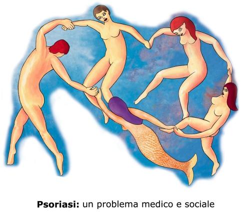 Come trattare un inasprimento di dermatite atopic