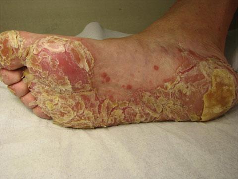 Eczema di disgidrotichesky che questo