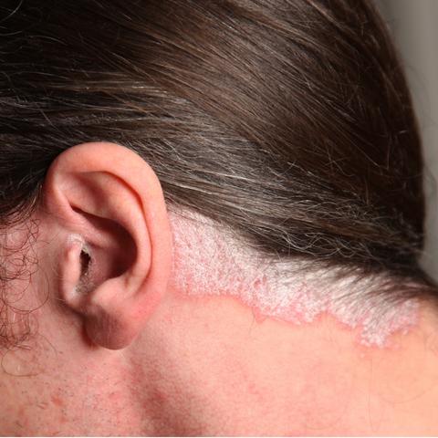 La psoriasis la cabeza que arreglar la caspa